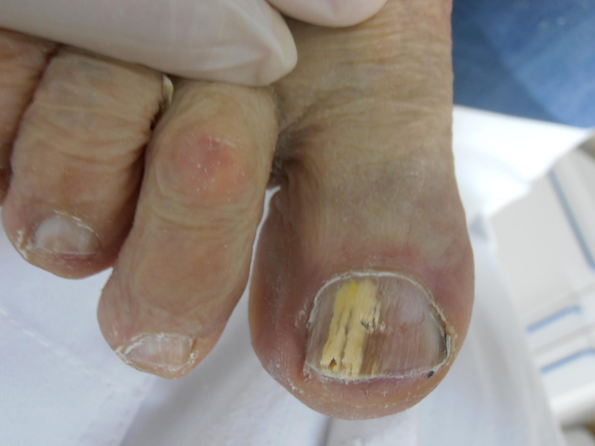 Alteraciones de la uñas
